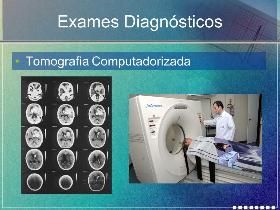 Exames Diagnósticos Tomografia Computadorizada