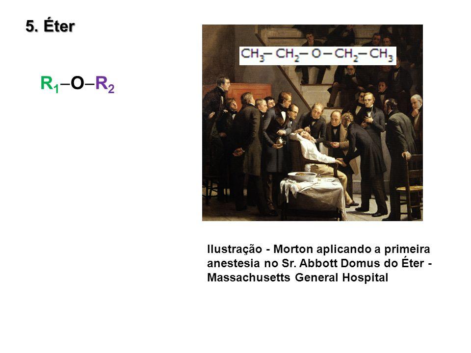 5. Éter R 1 O R 2 Ilustração - Morton aplicando a primeira anestesia no Sr. Abbott Domus do Éter - Massachusetts General Hospital