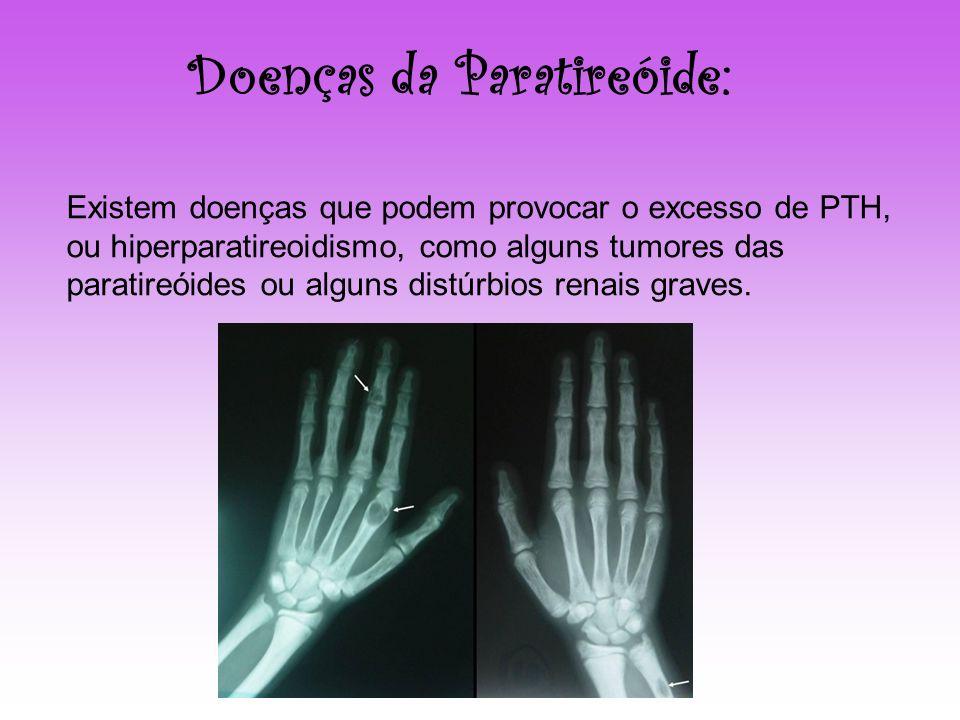Doenças da Paratireóide: Existem doenças que podem provocar o excesso de PTH, ou hiperparatireoidismo, como alguns tumores das paratireóides ou alguns
