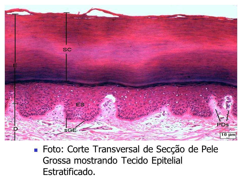 Foto à Esquerda: Tecido Conjuntivo Ósseo. Esquema à Direita: Estrutura Interna de um Osso.