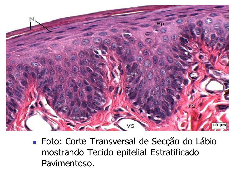 Foto: Corte Transversal da Traquéia mostrando Tecido Epitelial Pseudo- Estratificado.