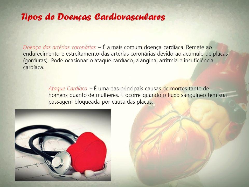 Tipos de Doenças Cardiovasculares Doença das artérias coronárias – É a mais comum doença cardíaca. Remete ao endurecimento e estreitamento das artéria