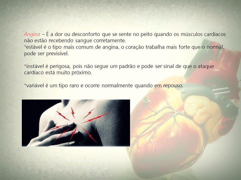 Angina – É a dor ou desconforto que se sente no peito quando os músculos cardíacos não estão recebendo sangue corretamente. *estável é o tipo mais com