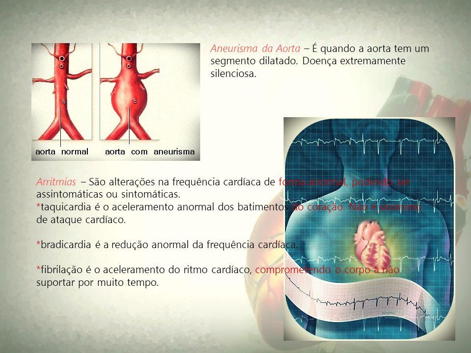 Aneurisma da Aorta – É quando a aorta tem um segmento dilatado. Doença extremamente silenciosa. Arritmias – São alterações na frequência cardíaca de f