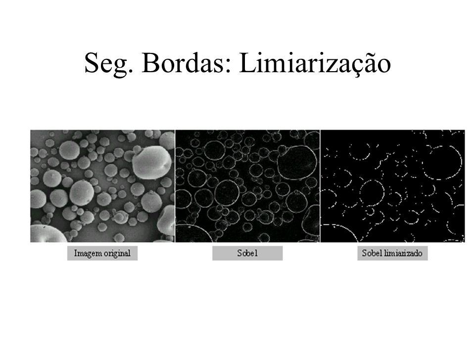 Seg. Bordas: Limiarização Operação de detecção de bordas Aplicar Thresholding sobre a imagem de arestas (edge image) –Valor de mínimo ou média do hist