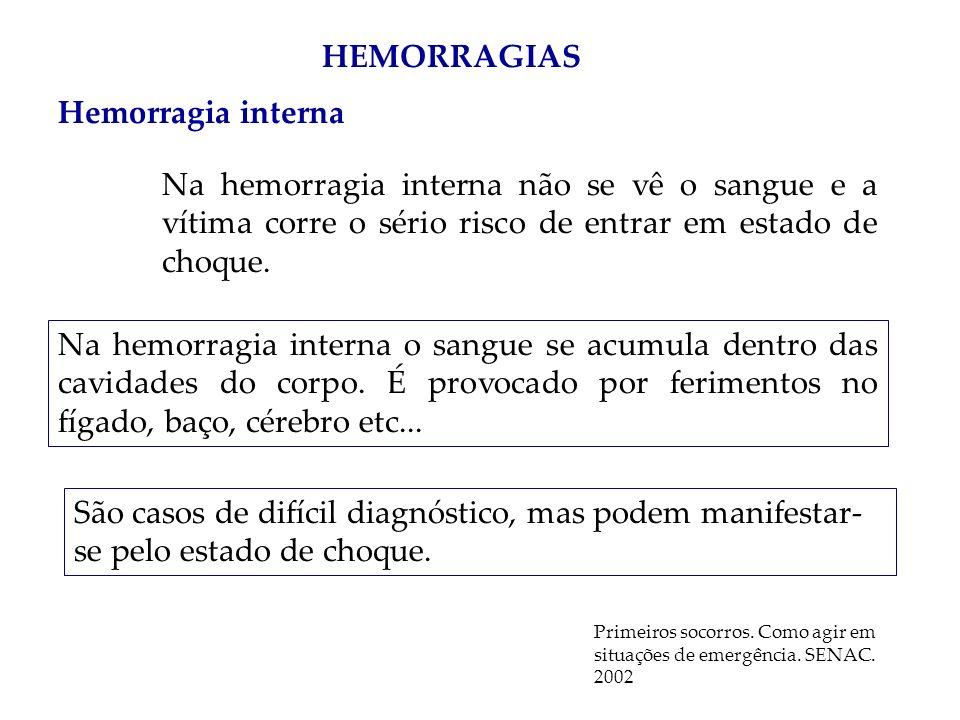 HEMORRAGIAS Hemorragia interna Na hemorragia interna não se vê o sangue e a vítima corre o sério risco de entrar em estado de choque. Na hemorragia in