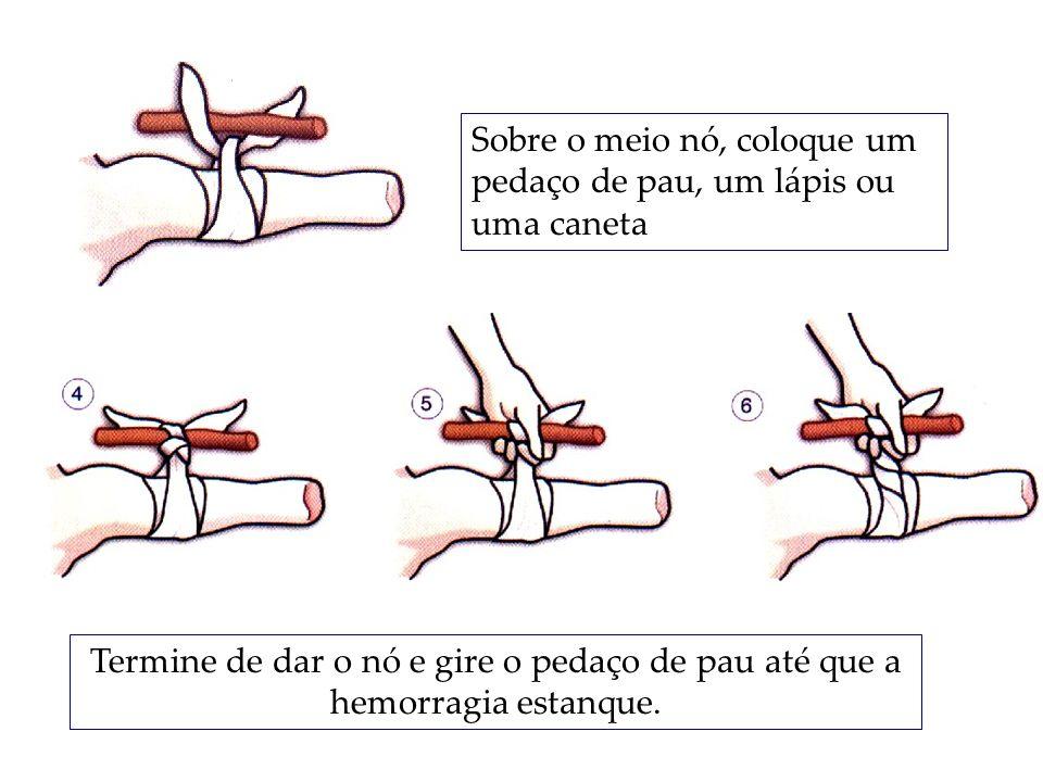 Sobre o meio nó, coloque um pedaço de pau, um lápis ou uma caneta Termine de dar o nó e gire o pedaço de pau até que a hemorragia estanque.