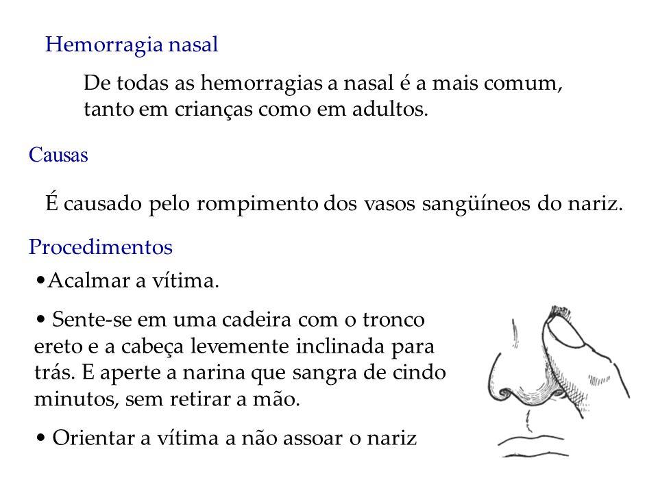 Hemorragia nasal De todas as hemorragias a nasal é a mais comum, tanto em crianças como em adultos. Causas É causado pelo rompimento dos vasos sangüín