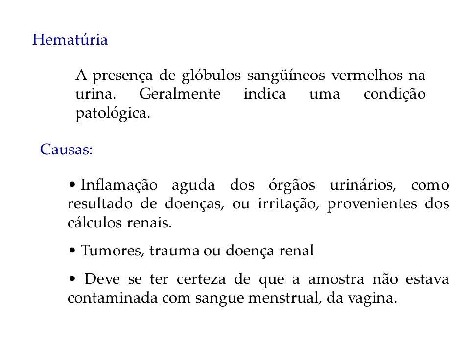 Hematúria A presença de glóbulos sangüíneos vermelhos na urina. Geralmente indica uma condição patológica. Causas: Inflamação aguda dos órgãos urinári