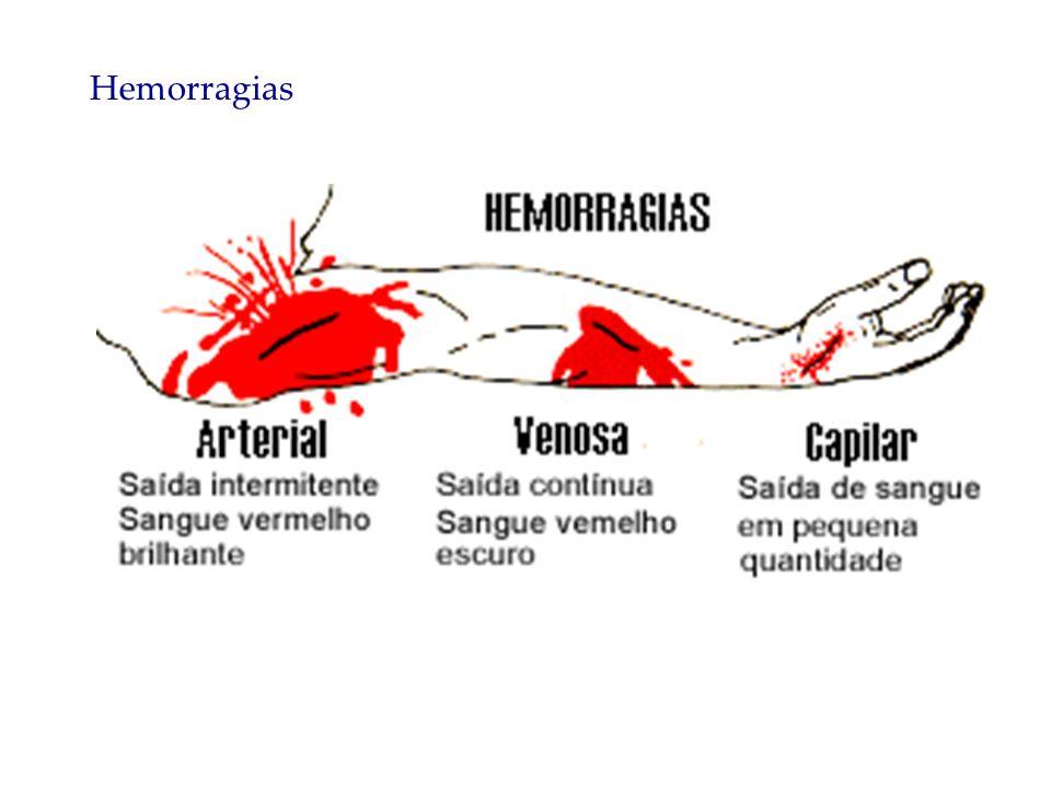 O torniquete só deve ser feito se a técnica de compressão direta e elevação do membro ferido não surtir efeito.