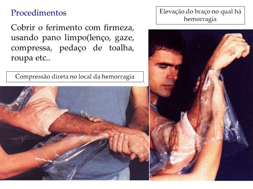 Procedimentos Cobrir o ferimento com firmeza, usando pano limpo(lenço, gaze, compressa, pedaço de toalha, roupa etc.. Compressão direta no local da he