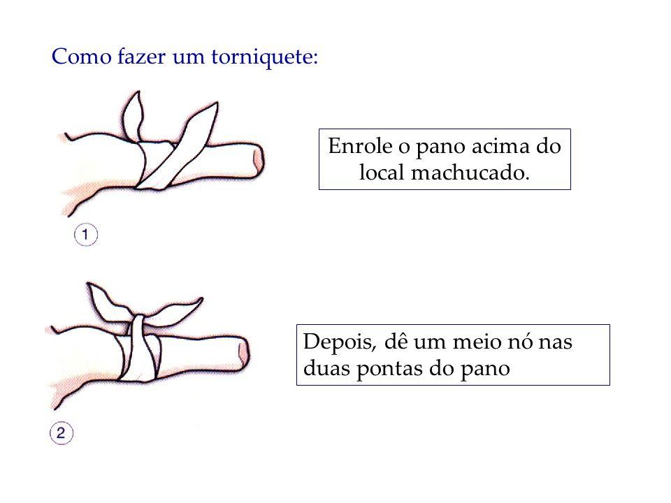 Como fazer um torniquete: Enrole o pano acima do local machucado. Depois, dê um meio nó nas duas pontas do pano