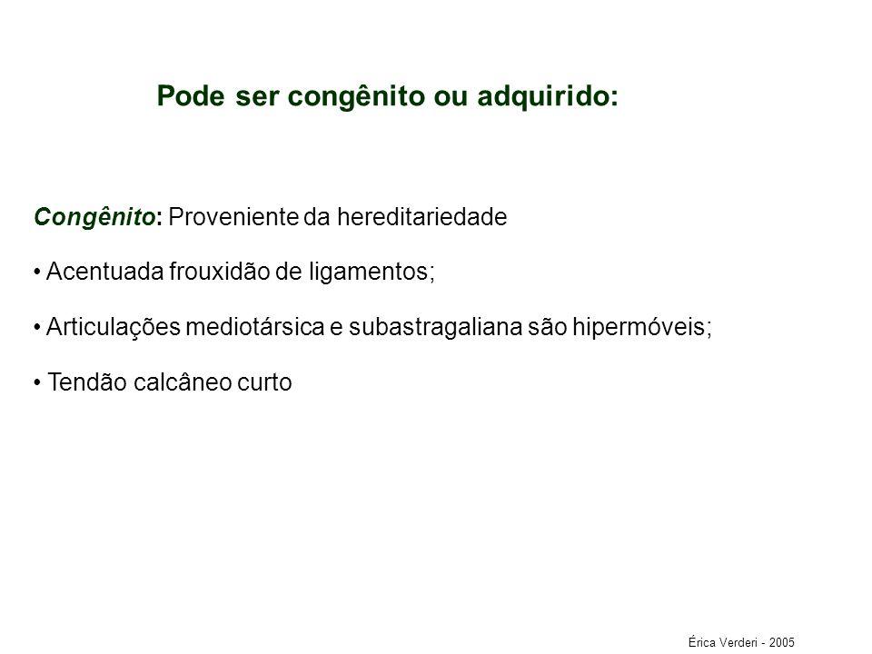 Pode ser congênito ou adquirido: Congênito: Proveniente da hereditariedade Acentuada frouxidão de ligamentos; Articulações mediotársica e subastragali