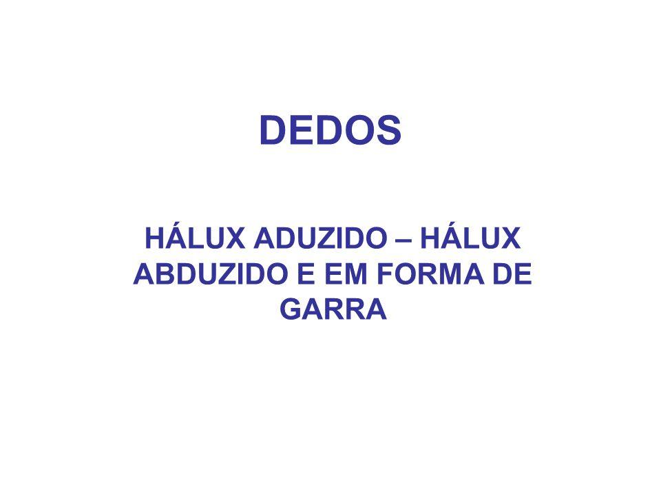 DEDOS HÁLUX ADUZIDO – HÁLUX ABDUZIDO E EM FORMA DE GARRA