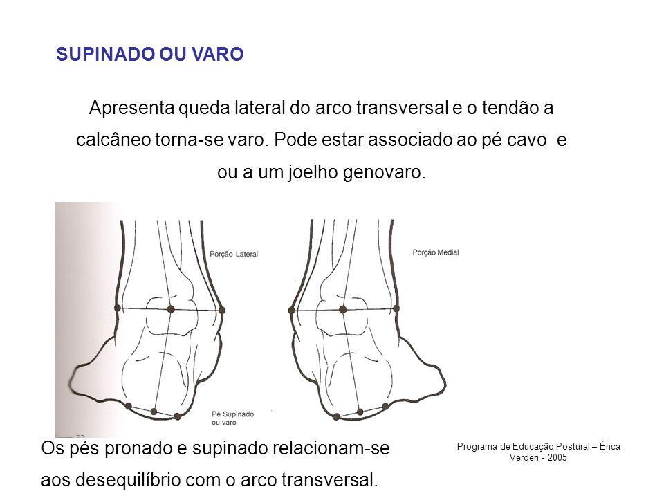 SUPINADO OU VARO Apresenta queda lateral do arco transversal e o tendão a calcâneo torna-se varo. Pode estar associado ao pé cavo e ou a um joelho gen