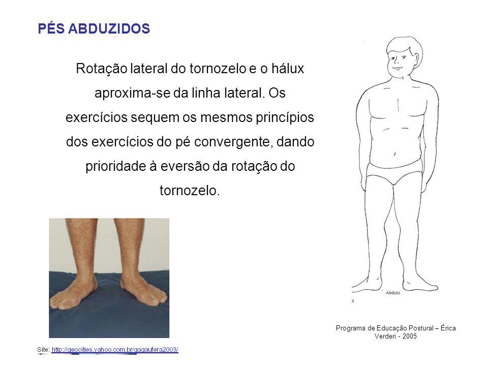 PÉS ABDUZIDOS Rotação lateral do tornozelo e o hálux aproxima-se da linha lateral. Os exercícios sequem os mesmos princípios dos exercícios do pé conv
