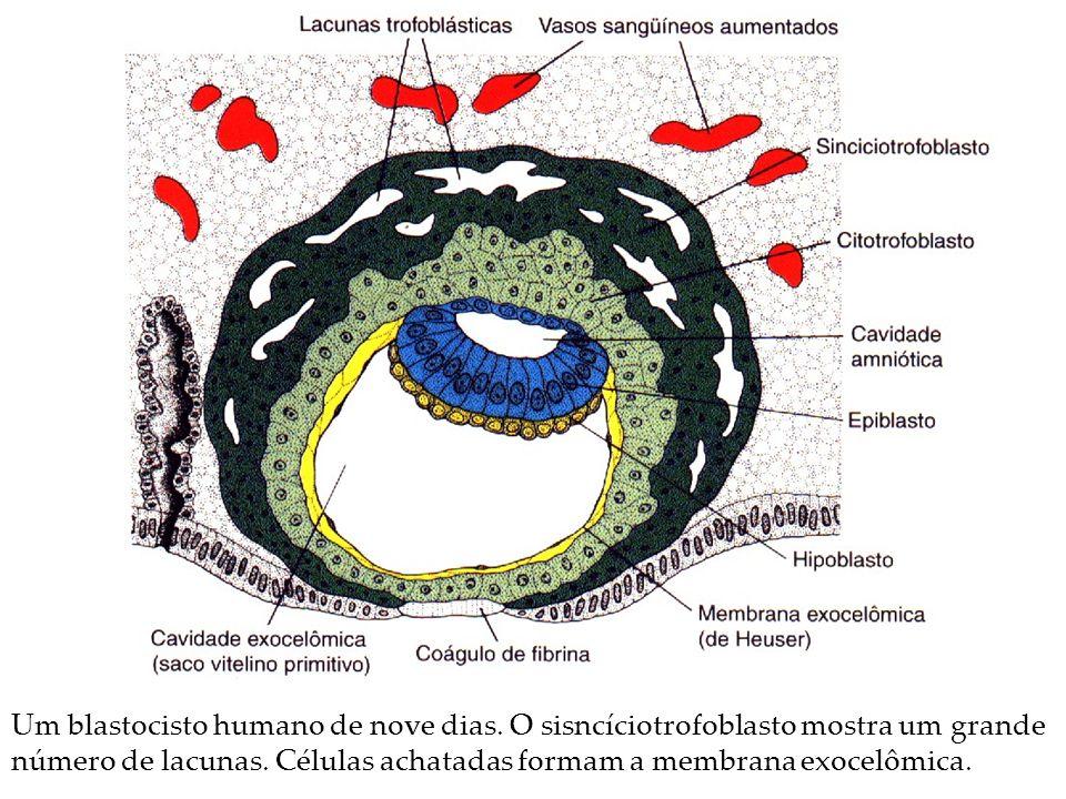 Um blastocisto humano de nove dias. O sisncíciotrofoblasto mostra um grande número de lacunas. Células achatadas formam a membrana exocelômica.