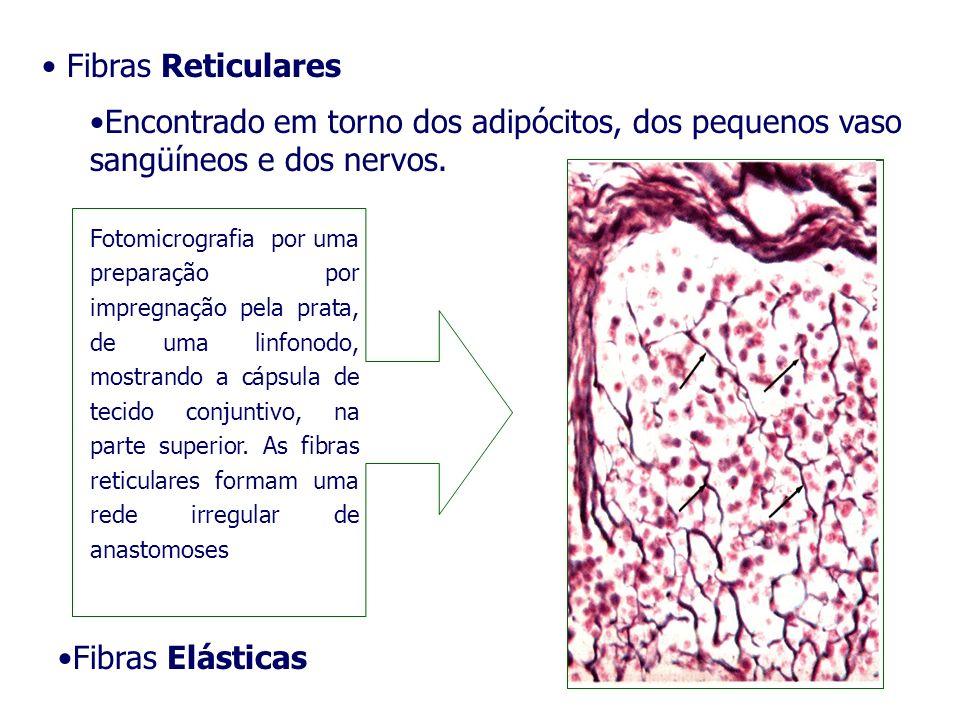 Fibras Elásticas Fibras Reticulares Encontrado em torno dos adipócitos, dos pequenos vaso sangüíneos e dos nervos. Fotomicrografia por uma preparação