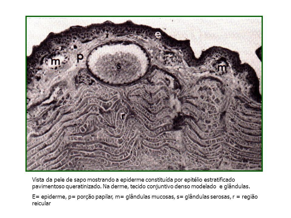 Vista da pele de sapo mostrando a epiderme constituída por epitélio estratificado pavimentoso queratinizado. Na derme, tecido conjuntivo denso modelad