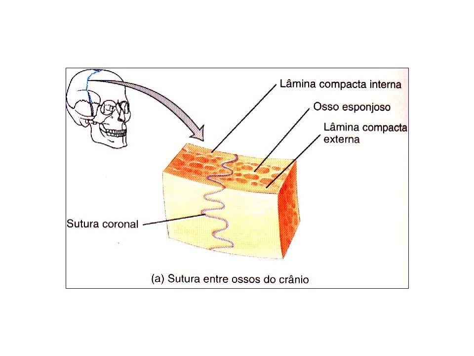 Gonfose (gonphosis = fixar em conjunto) um pino em forma de cone ajusta-se a um alvéolo.
