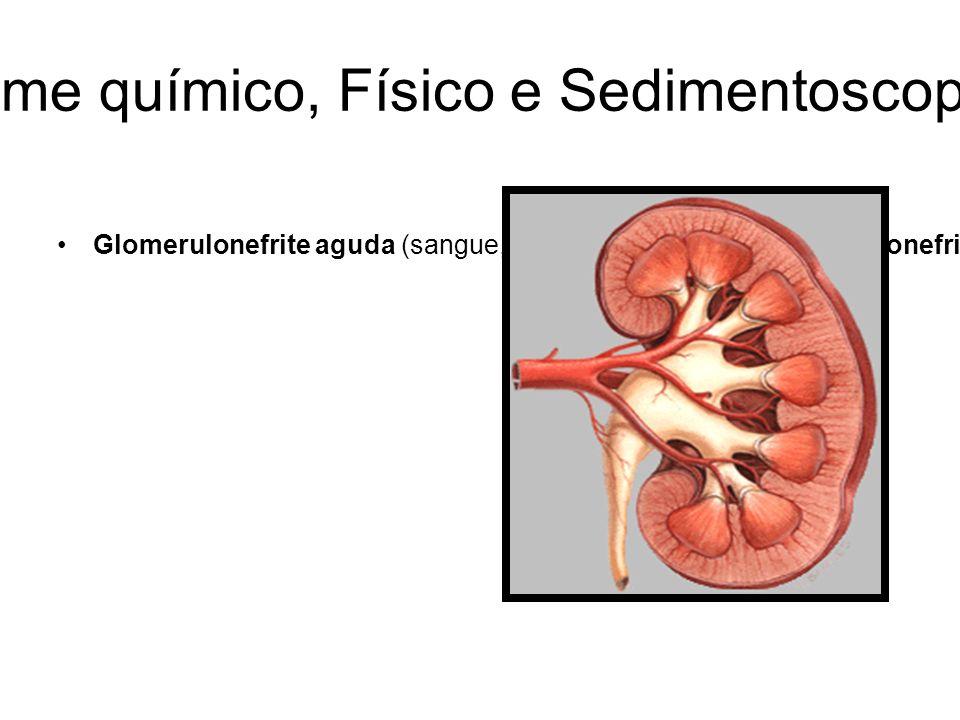 URINÁLISE: Exame químico, Físico e Sedimentoscopia-Revisão Geral Glomerulonefrite aguda (sangue, proteínas e cilindros);Glomerulonefrite de progressão rápida (sangue, proteínas e cilindros);Nefrite Intersticial aguda – pielonefrite, intoxicação medicamentosa, septicemia, distúrbios imunológicos (hematúria, leucócitos, cilindros leucocitários, bactérias, proteinúria leve ou moderada);