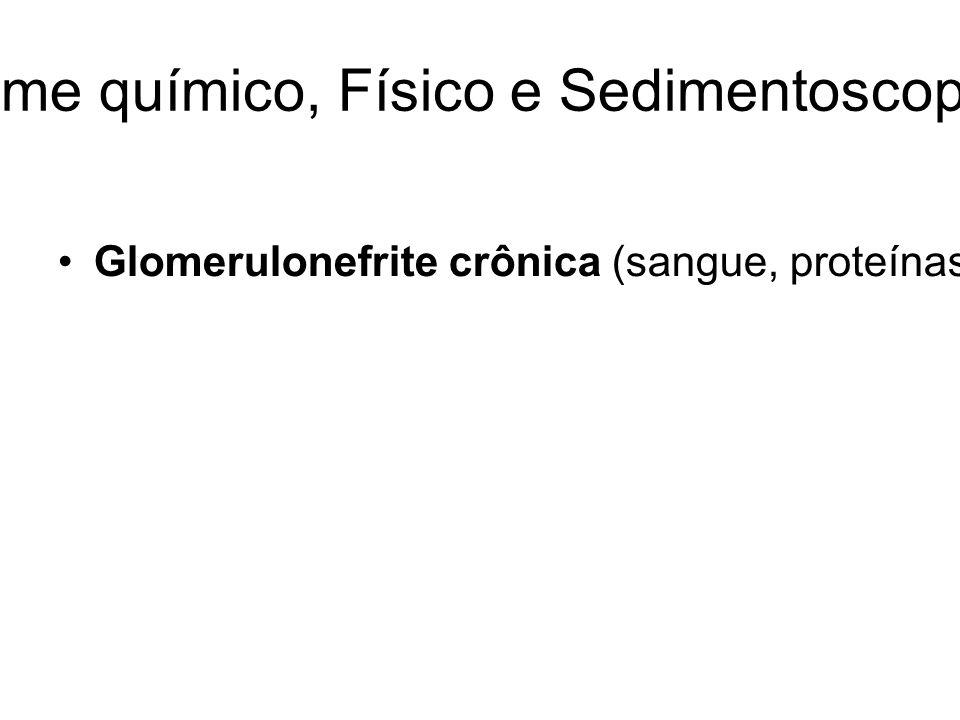 URINÁLISE: Exame químico, Físico e Sedimentoscopia-Revisão Geral Glomerulonefrite crônica (sangue, proteínas, grande variedade de cilindros, cilindros grandes – densidade 1010);Glomerulonefrite membranosa – doenças auto-imunes com deposição de imunocomplexos (Hematúria, proteinúria) – Síndrome Nefrótica.