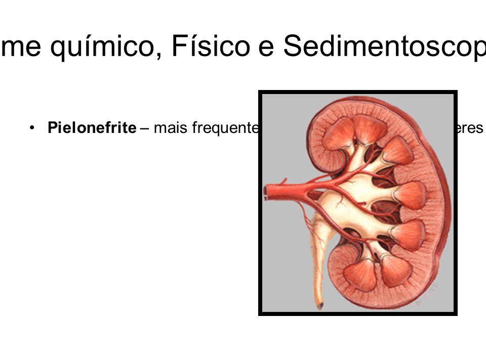 URINÁLISE: Exame químico, Físico e Sedimentoscopia-Revisão Geral Pielonefrite – mais frequentemente observada em mulheres – cistite, infecções trato inferior (leucócitos, cilindros leucocitários, bactérias, nitrito, possível proteinúria e hematúria);Insuficiência Renal.