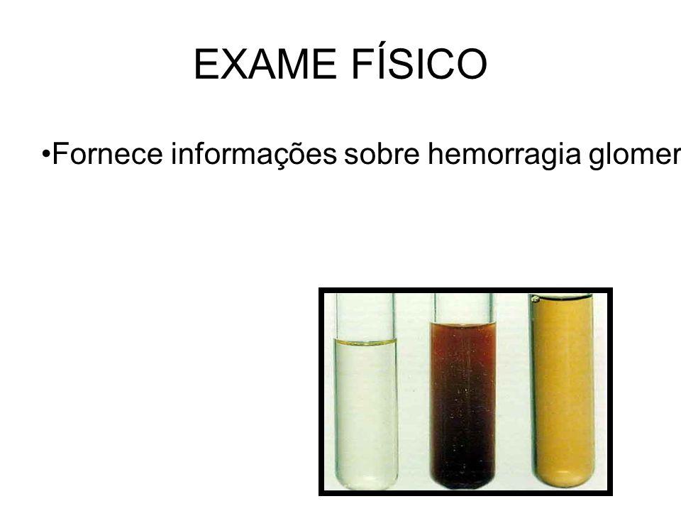 EXAME FÍSICO Fornece informações sobre hemorragia glomerular, hepatopatias, erros inatos do metabolismo e infecções do trato urinário.
