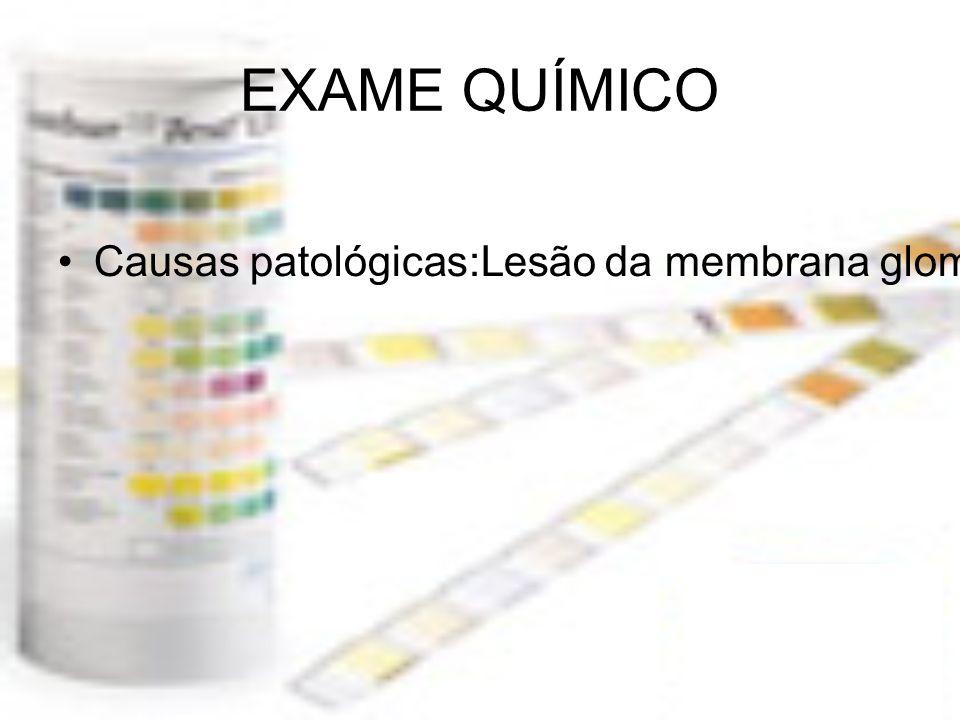 EXAME QUÍMICO Causas patológicas:Lesão da membrana glomerular(material amilóide, agentes tóxicos, lupus e glomerulonefrite estreptocócica);Pré-eclâmpsia;Distúrbios da reabsorção tubular;ALBUMINA Baixo PM