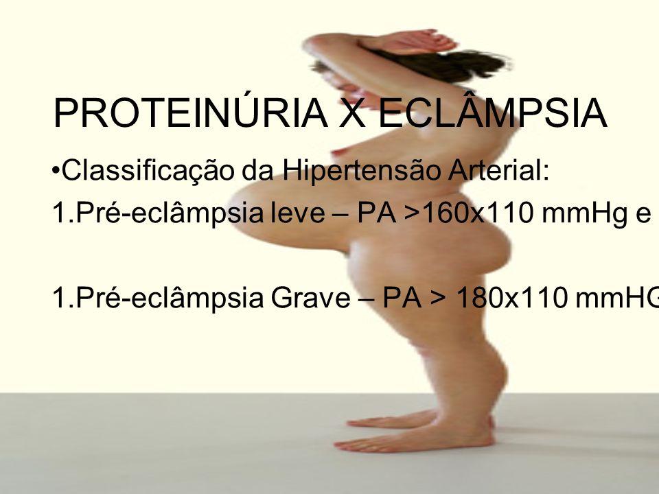 PROTEINÚRIA X ECLÂMPSIA Classificação da Hipertensão Arterial: 1.Pré-eclâmpsia leve – PA >160x110 mmHg e proteinúria > 200 mg/24 horas. 1.Pré-eclâmpsi