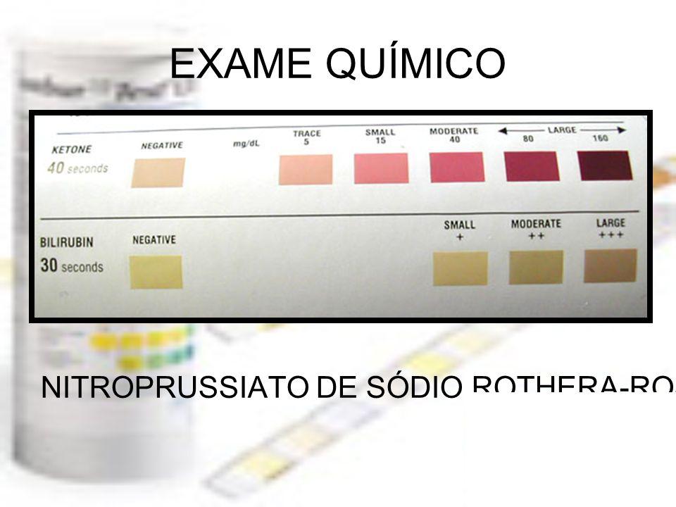 EXAME QUÍMICO NITROPRUSSIATO DE SÓDIO ROTHERA-ROSS