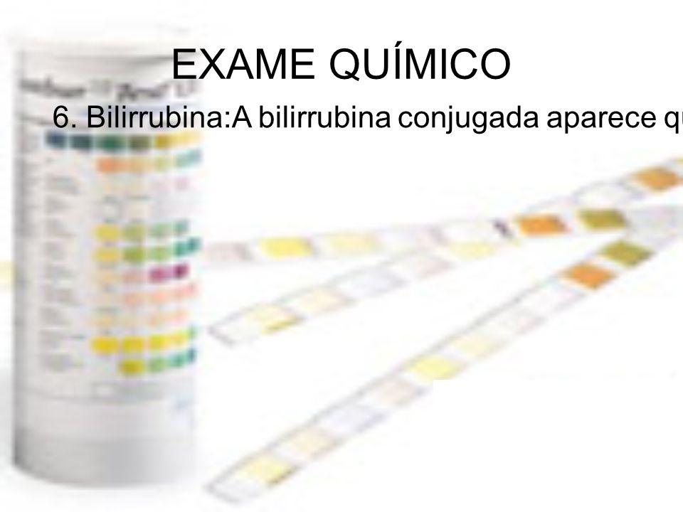 EXAME QUÍMICO 6. Bilirrubina:A bilirrubina conjugada aparece quando seu ciclo de degradação é interrompido...Significado Clínico:HepatiteCirroseObstru