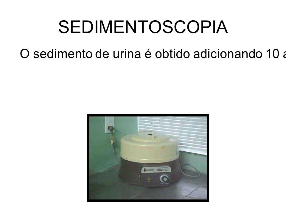 SEDIMENTOSCOPIA O sedimento de urina é obtido adicionando 10 a 15 ml de urina em tubo cônico apropriado promovendo-se centrifugação durante 5 minutos por 1500 a 2500 RPM.