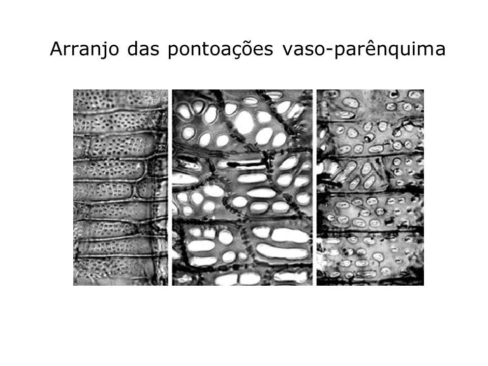 Arranjo das pontoações vaso-parênquima