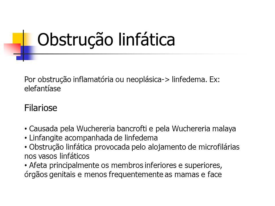 Obstrução linfática Por obstrução inflamatória ou neoplásica-> linfedema. Ex: elefantíase Filariose Causada pela Wuchereria bancrofti e pela Wuchereri
