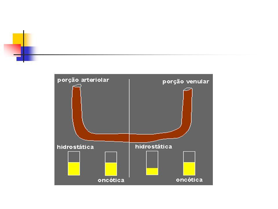 Classificação De acordo com a região acometida Localizado: líquido intersticial em um local específico do corpo Sistêmico: líquido intersticial em muitos ou todos os órgãos De acordo com sua composição: Transudato: * baixo teor de proteínas e menor densidade * permeabilidade vascular preservada * líquido claro Exsudato: * rico em proteínas e com maior densidade * inflamação -> liberação de mediadores químicos-> permeabilidade vascular * líquido turvo