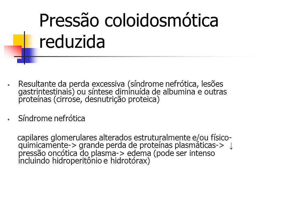 Pressão coloidosmótica reduzida Resultante da perda excessiva (síndrome nefrótica, lesões gastrintestinais) ou síntese diminuída de albumina e outras