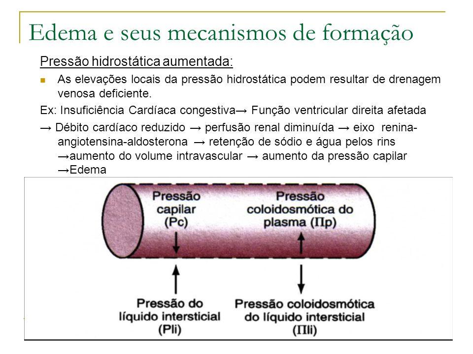 Edema e seus mecanismos de formação Pressão hidrostática aumentada: As elevações locais da pressão hidrostática podem resultar de drenagem venosa defi