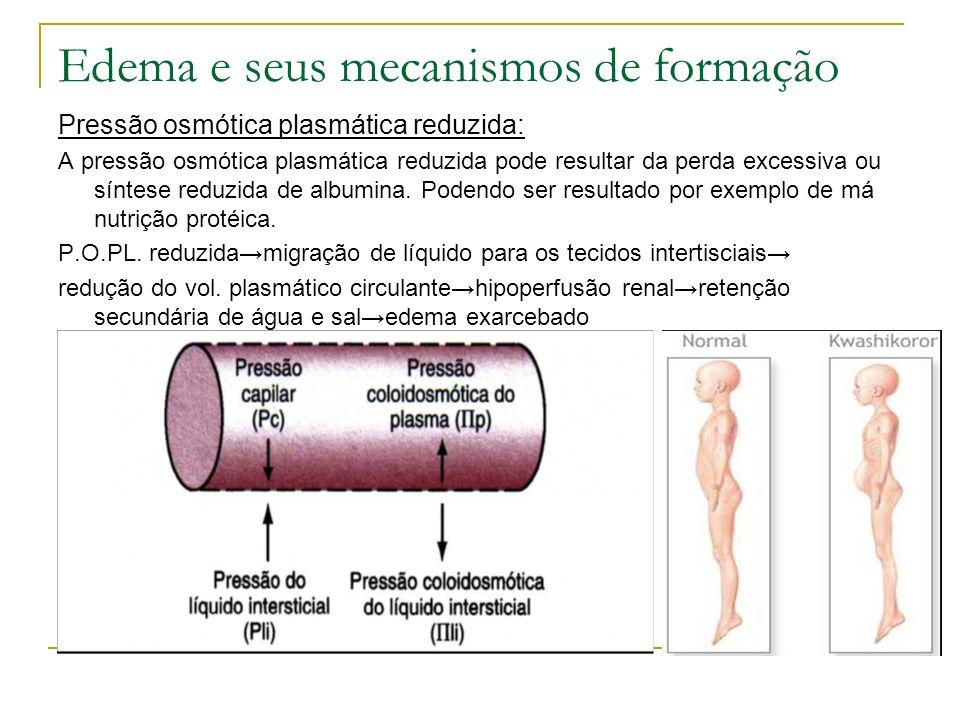 Edema e seus mecanismos de formação Pressão osmótica plasmática reduzida: A pressão osmótica plasmática reduzida pode resultar da perda excessiva ou s