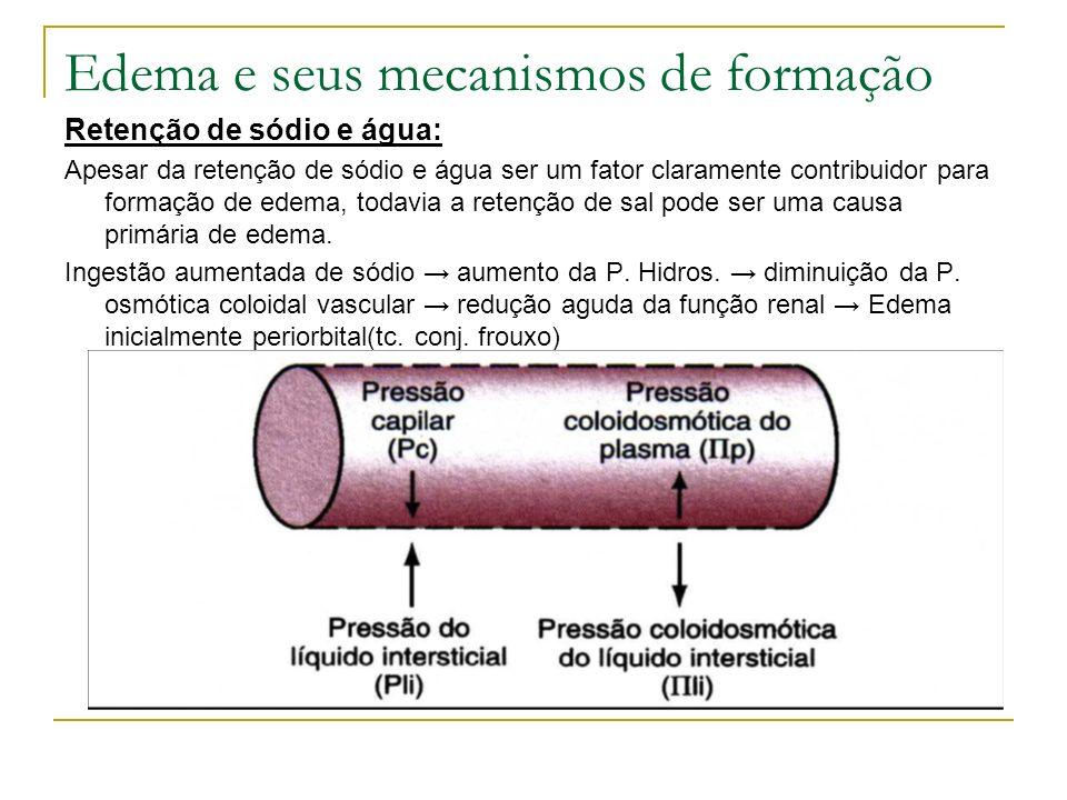 Edema e seus mecanismos de formação Retenção de sódio e água: Apesar da retenção de sódio e água ser um fator claramente contribuidor para formação de