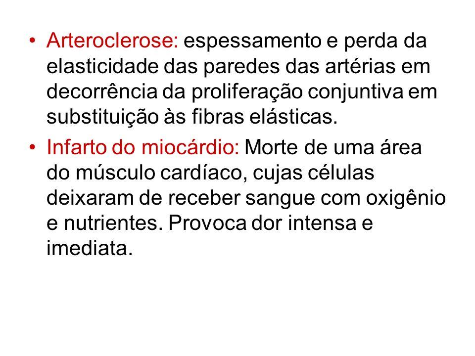 Arteroclerose: espessamento e perda da elasticidade das paredes das artérias em decorrência da proliferação conjuntiva em substituição às fibras elást