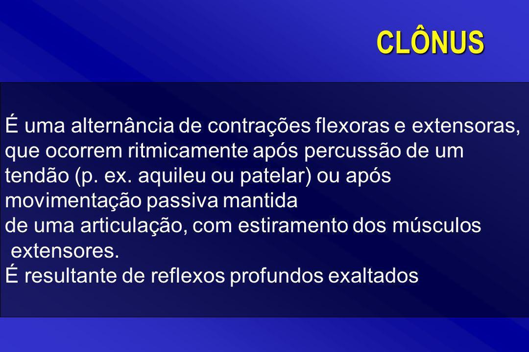 É uma alternância de contrações flexoras e extensoras, que ocorrem ritmicamente após percussão de um tendão (p. ex. aquileu ou patelar) ou após movime