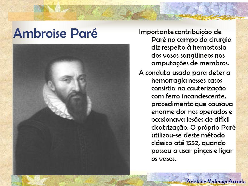 Adriano Valenga Arruda Ambroise Paré Importante contribuição de Paré no campo da cirurgia diz respeito à hemostasia dos vasos sangüíneos nas amputaçõe