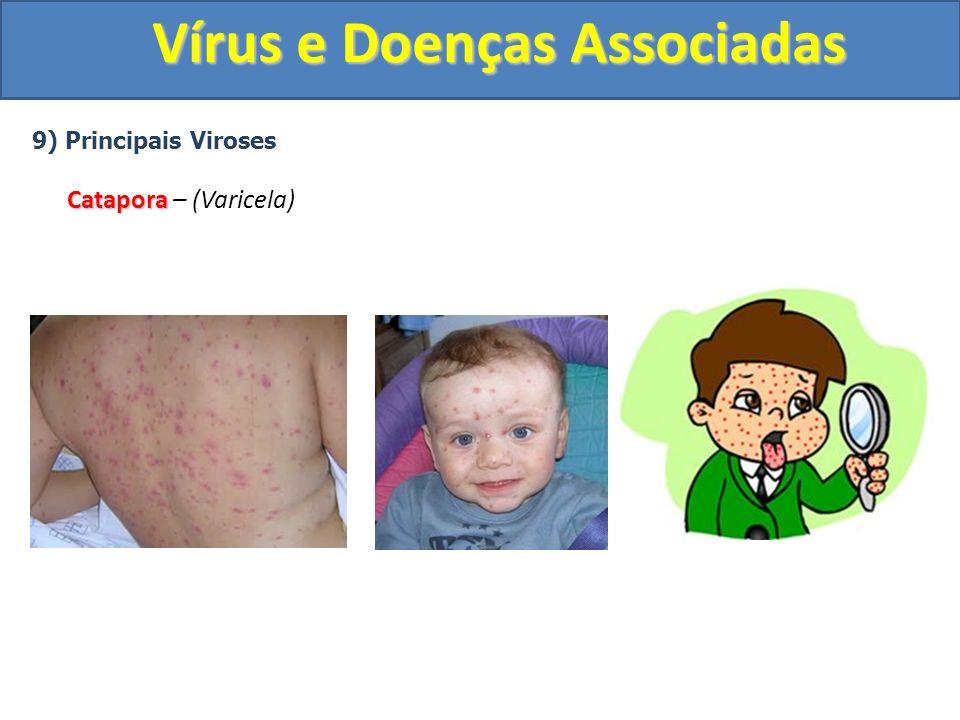 Vírus e Doenças Associadas 9) Principais Viroses Catapora Catapora – (Varicela)