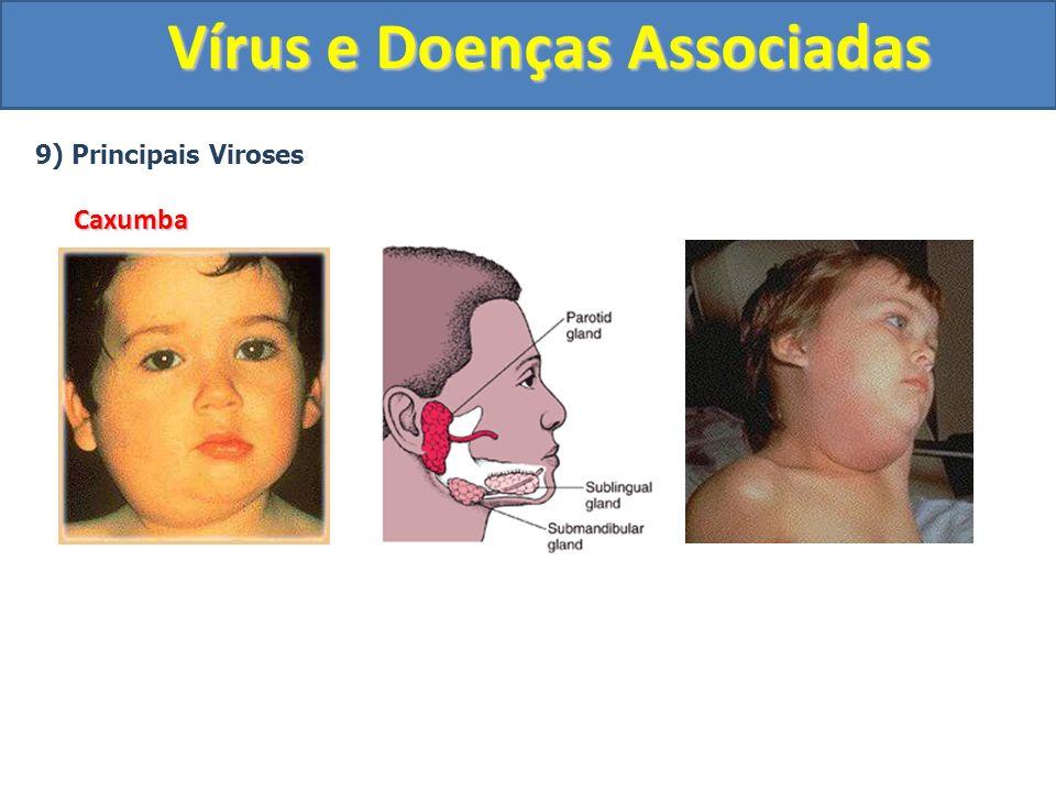Vírus e Doenças Associadas 9) Principais VirosesCaxumba