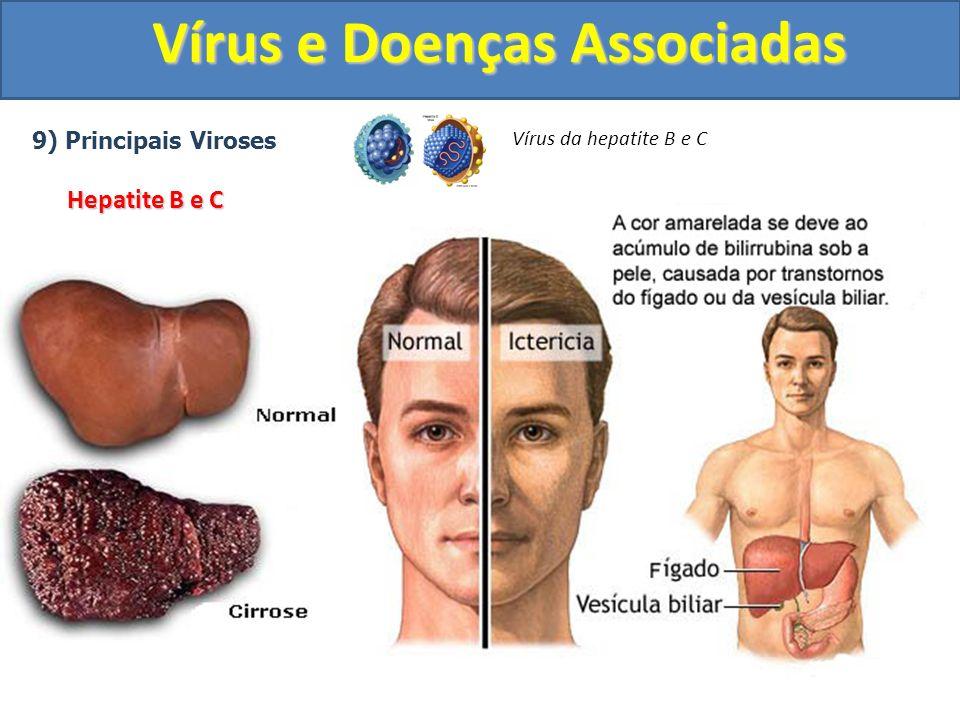 Vírus e Doenças Associadas 9) Principais Viroses Hepatite B e C Vírus da hepatite B e C