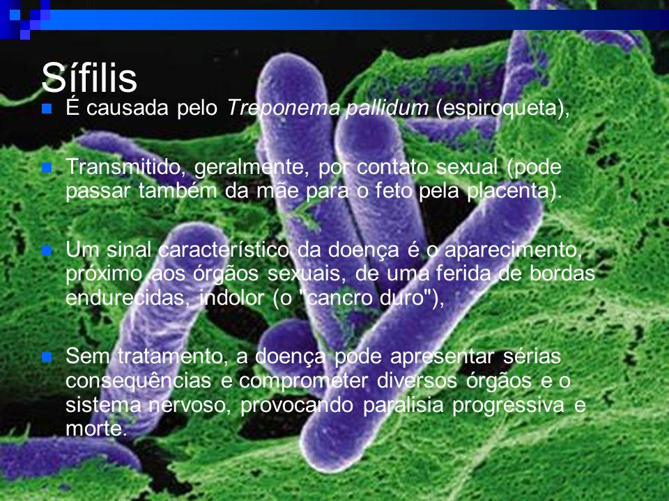 Sífilis É causada pelo Treponema pallidum (espiroqueta), Transmitido, geralmente, por contato sexual (pode passar também da mãe para o feto pela place