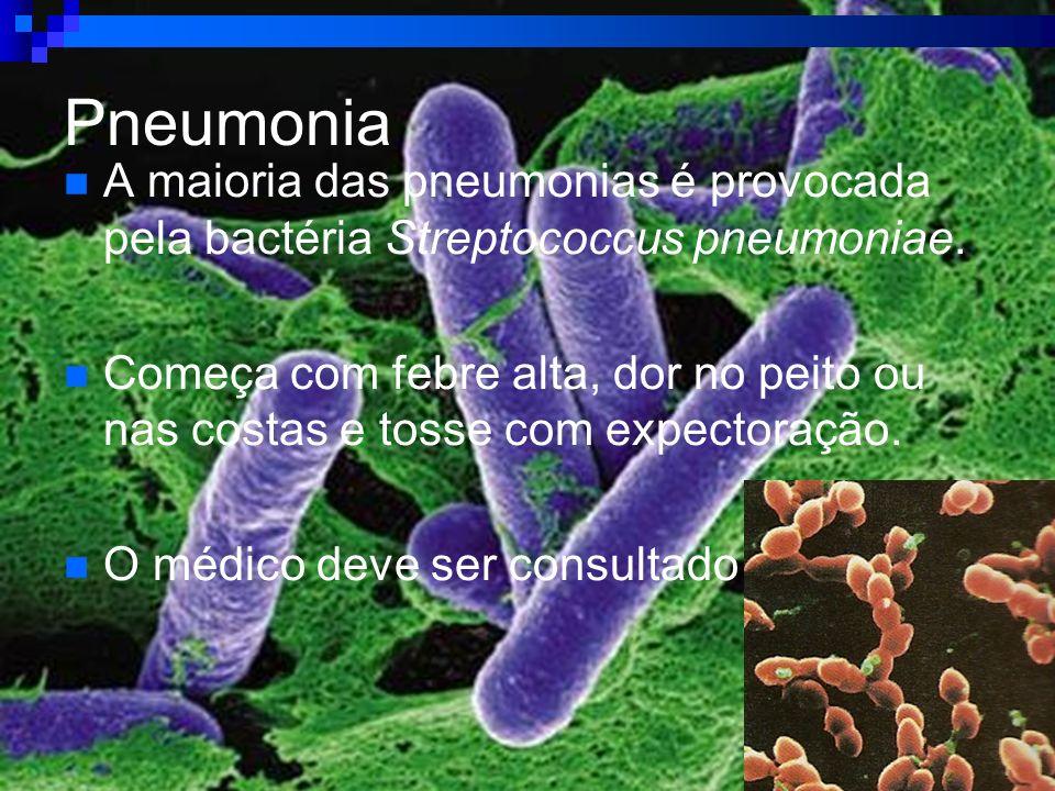 Pneumonia A maioria das pneumonias é provocada pela bactéria Streptococcus pneumoniae. Começa com febre alta, dor no peito ou nas costas e tosse com e