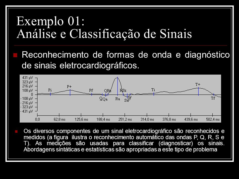 Exemplo 01: Análise e Classificação de Sinais Reconhecimento de formas de onda e diagnóstico de sinais eletrocardiográficos. Os diversos componentes d