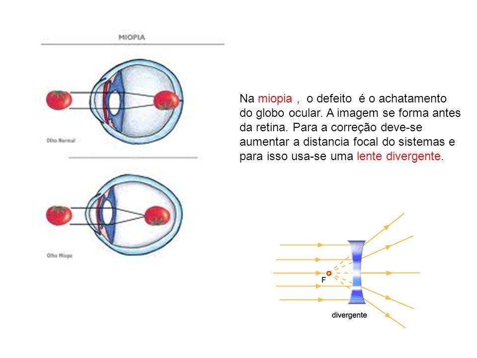 Na miopia, o defeito é o achatamento do globo ocular. A imagem se forma antes da retina. Para a correção deve-se aumentar a distancia focal do sistema